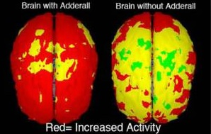 human brain with and without adderall abuse